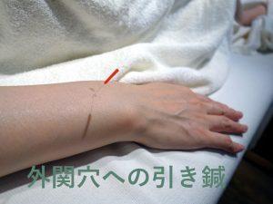 hikibari1